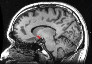 Bağımlılık ve haz merkezlerinin en önemlilerinden birisi olan accumbens çekirdeği, görüntüde kırmızı renkle gösterilen alana denk geliyor.